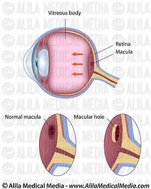 Macular hole eye disease