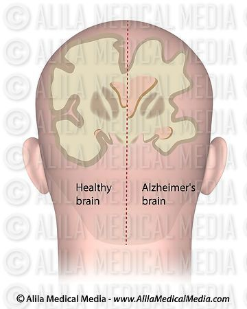 Cerebro saludable vs. Cerebro de Alzheimer