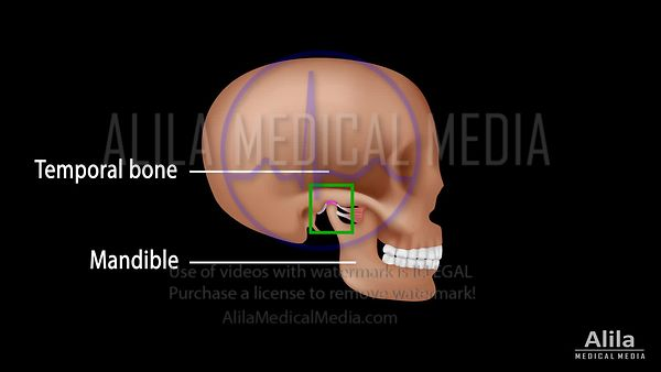 TMJ and Myofascial pain syndrome NARRATED animation.