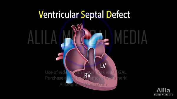 Ventricular septal defect NARRATED animation