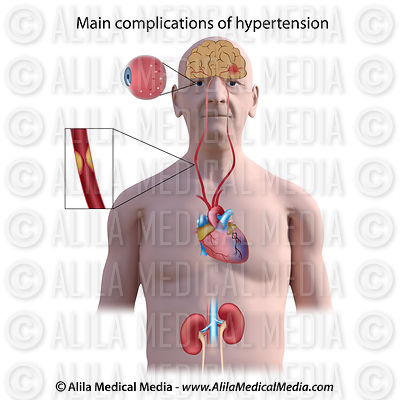 Hypertension complications unlabeled.