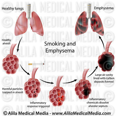 Smoking and Emphysema