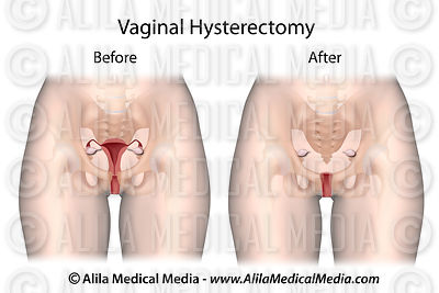 Vaginal Hysterectomy unlabeled