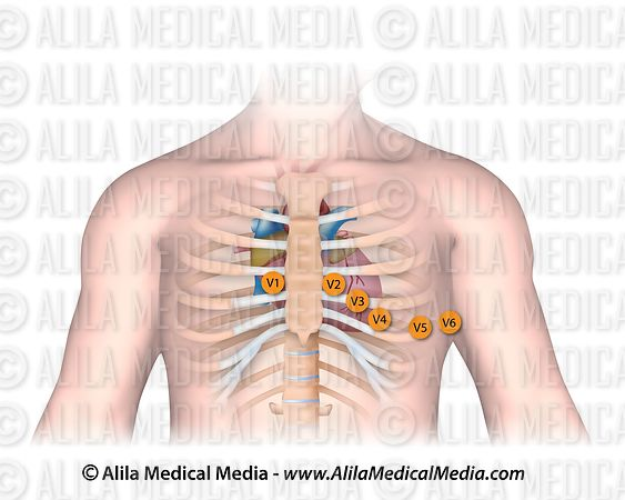 Placement of chest electrodes for ECG recording