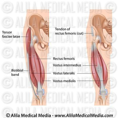 Quadriceps muscle labeled diagram.