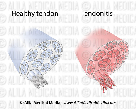Tendon degeneration
