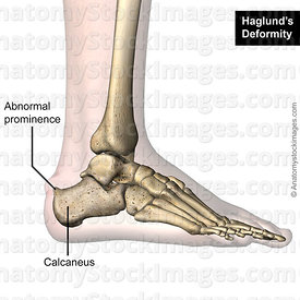 ankle-haglund-s-deformity-calcaneus-lateral-skin-names
