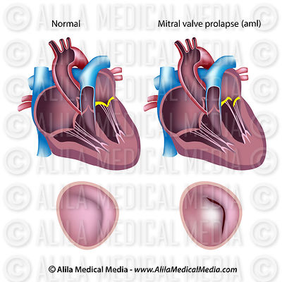 Mitral valve prolapse (aml) and regurgitation