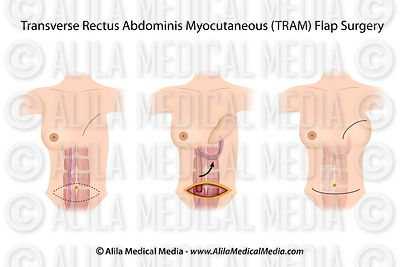 Breast reconstruction - pedicle TRAM flap.