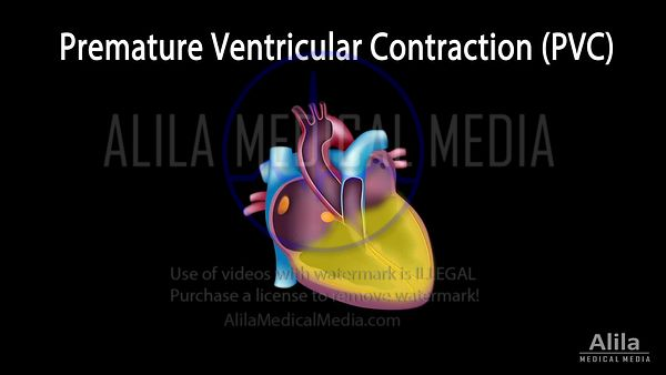 Premature ventricular contraction (PVC) NARRATED animation