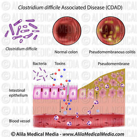 Clostridium difficile Associated Disease (CDAD)