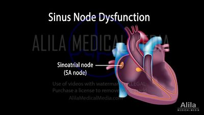 Sinus node dysfunction NARRATED animation