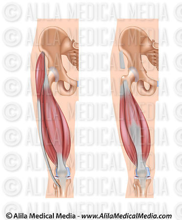 Quadriceps muscle unlabeled drawing.