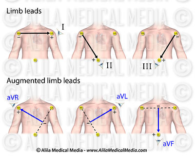 Limb leads and augmented limb leads