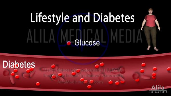 How unhealthy lifestyle causes prediabetes and diabetes, NARRATED animation