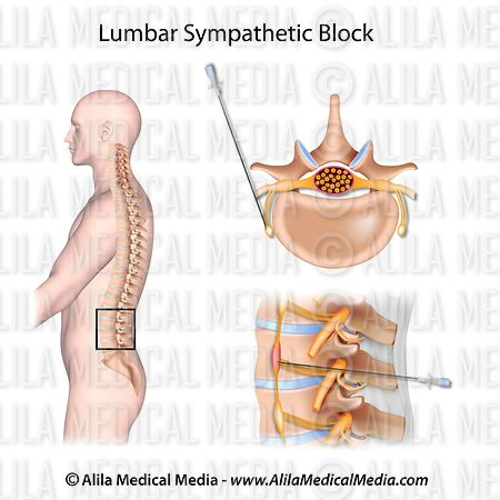 Lumbar sympathetic block
