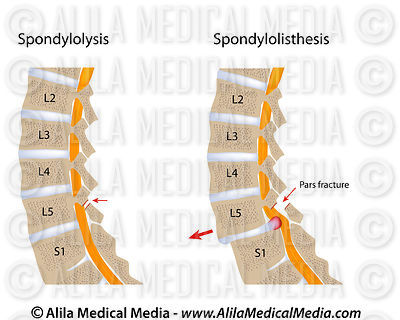Spondylolysis and spondylolisthesis, unlabeled