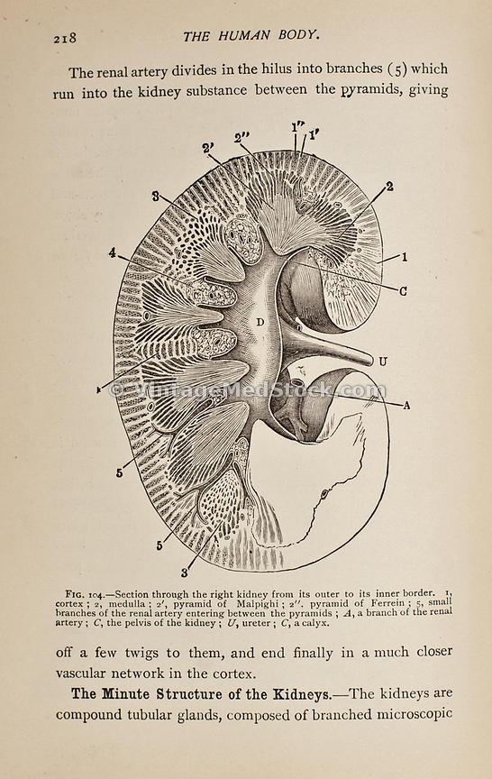 VintageMedStock   Nephrology, Kidneys, Urinary System
