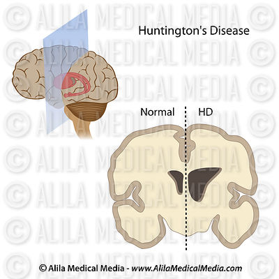 Huntington's disease basal ganglia