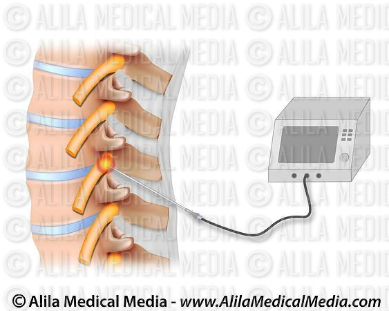 Pulsed radiofrequency