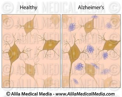 Alzheimer's disease brain tissue with amyloid