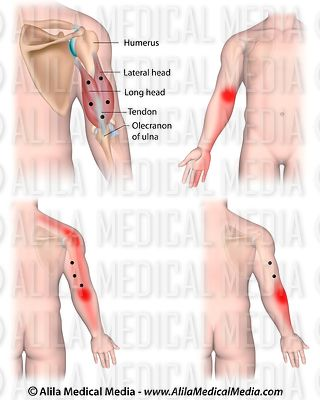Trigger points and referred pain for the triceps