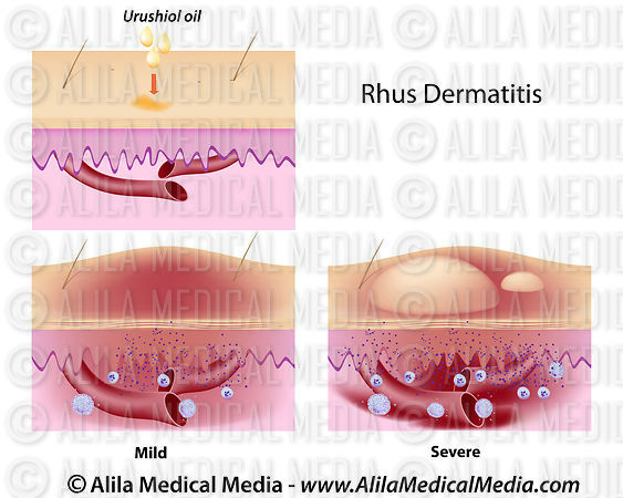 Urushiol oil induced contact dermatitis