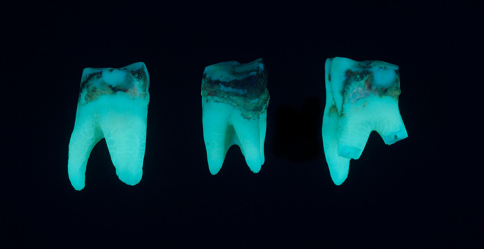 Ultraviolet fluorescence of molar teeth