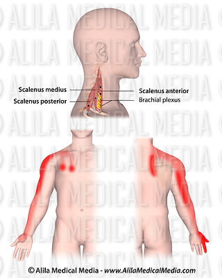 Trigger points and referred pain for the scalenes