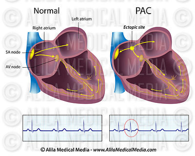 Premature atrial contraction, PAC