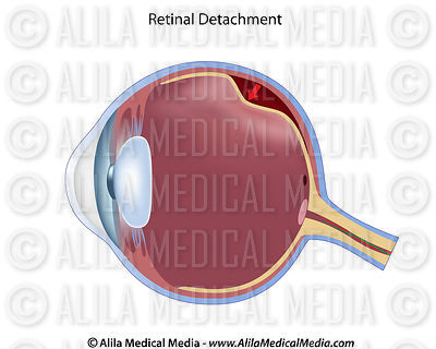 Eye retinal detachment unlabeled diagram.
