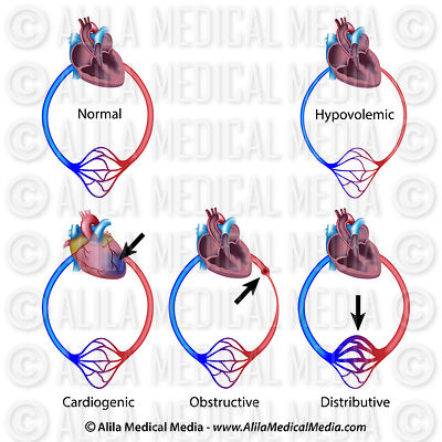 Types of circulatory shock