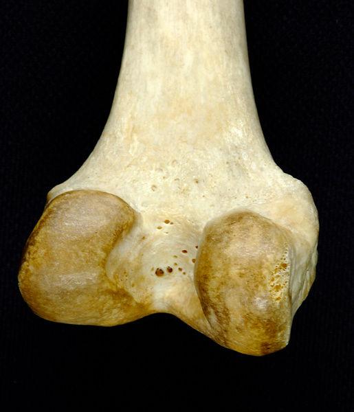 David Bryson | Head of femur showing attachment for