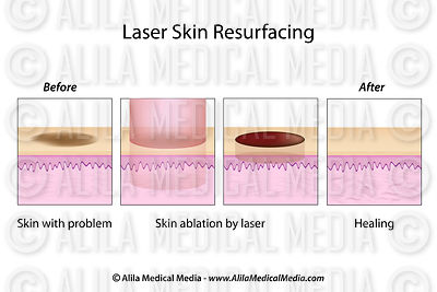 Laser Skin Resurfacing, labeled diagram.