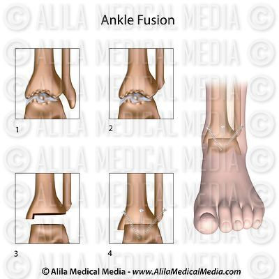 Ankle fusion surgery unlabeled diagram.