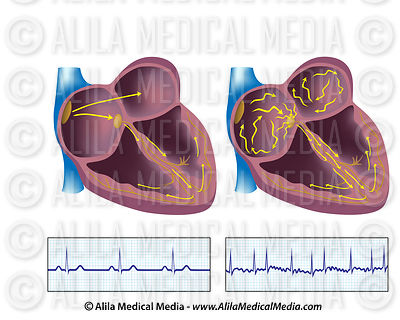 Atrial fibrillation and ecg, unlabeled.