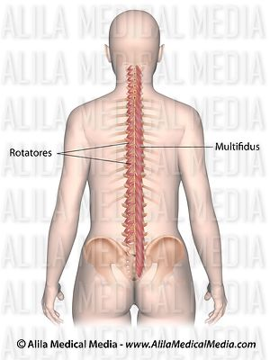 The multifidus and the rotatores muscles labeled