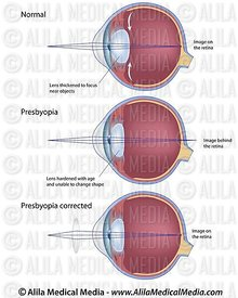 Eye condition :presbyopia