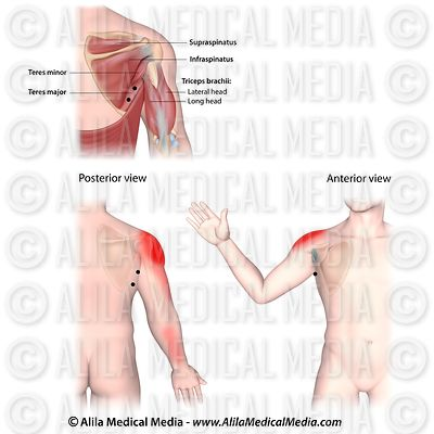 Trigger points and referred pain patterns for the teres major