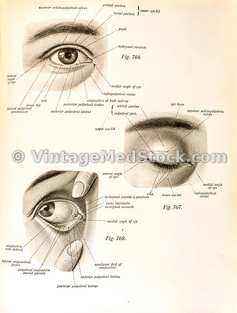 Eye, Ophthalmology, Ophthalmologist,