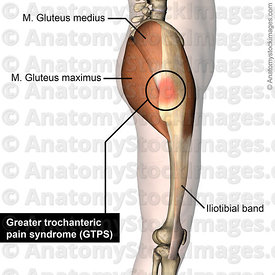 hip-greater-trochanteric-pain-syndrome-gluteus-maximus-medius-trochanter-major-iliotibial-band-side-skin-names