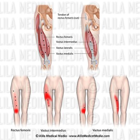 Trigger point and referred pain for the quadriceps muscle