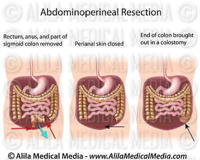 Abdominoperineal resection.