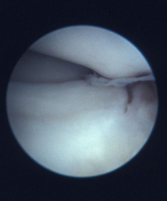 Parrot beak tear of the meniscus