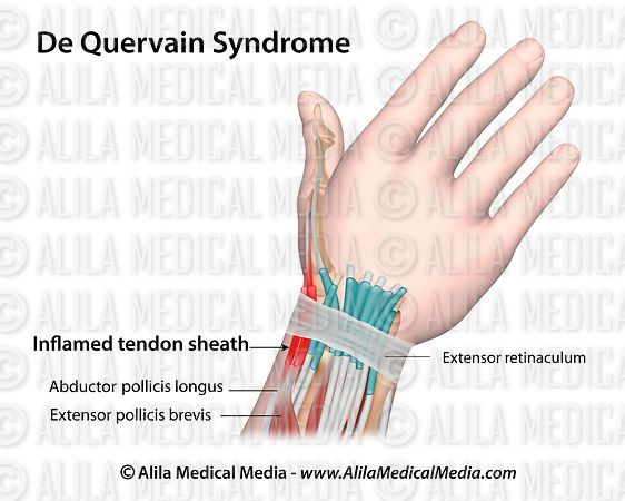 De Quervain syndrome labeled.
