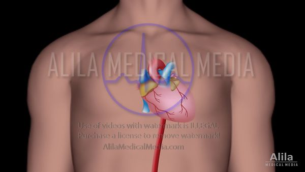 Cardiac catheterization video