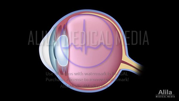 Angle closure glaucoma video.