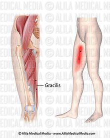 Puntos gatillo y dolor referido para el gracilis