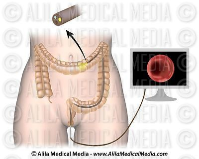 Colonoscopy procedure unlabeled.