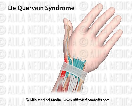 DeQuervain syndrome drawing